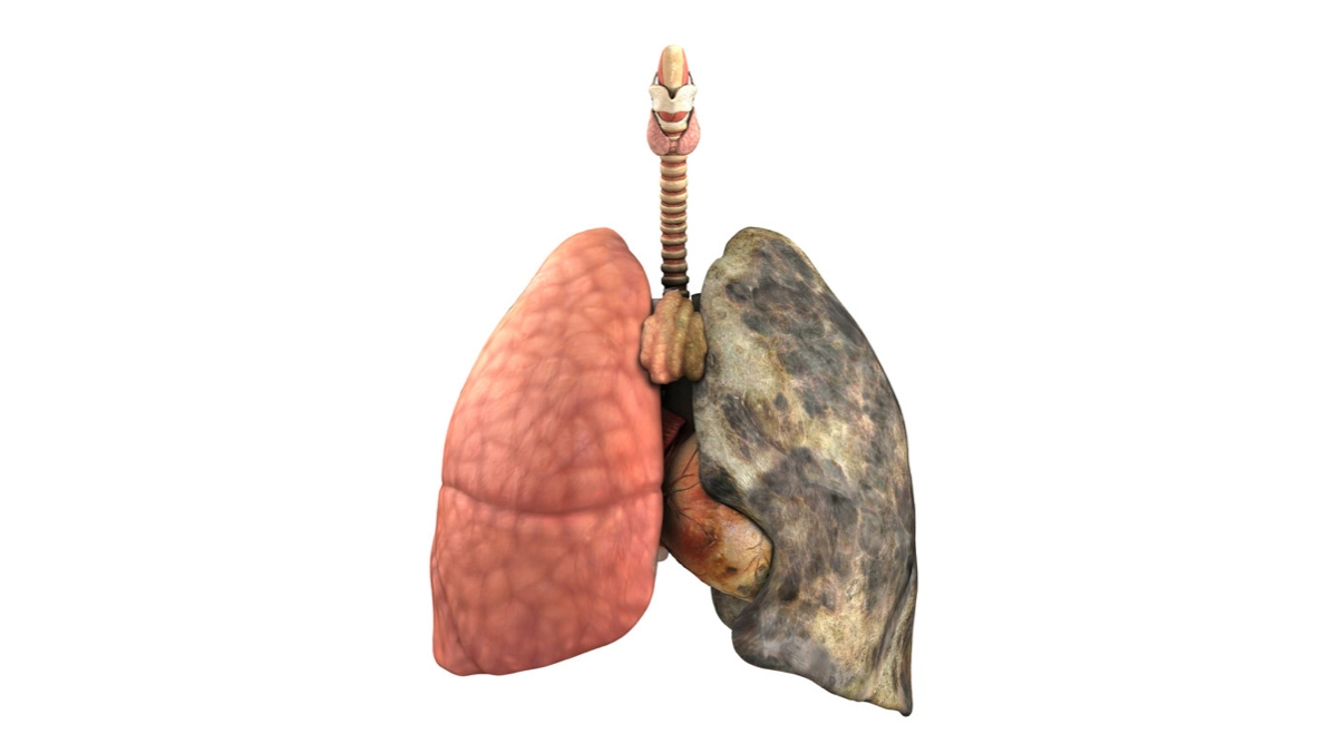 Lung Cleanse For Smokers Tips To Renew The Health Of Your
