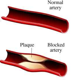 how to unclog arteries naturally