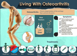 natural treatment of osteoarthritis