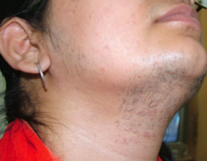 Female Facial Hair Cause 101